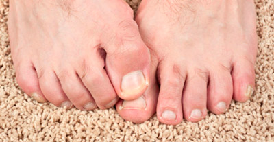 Top 7 Ways To Avoid Toe Nail Fungus